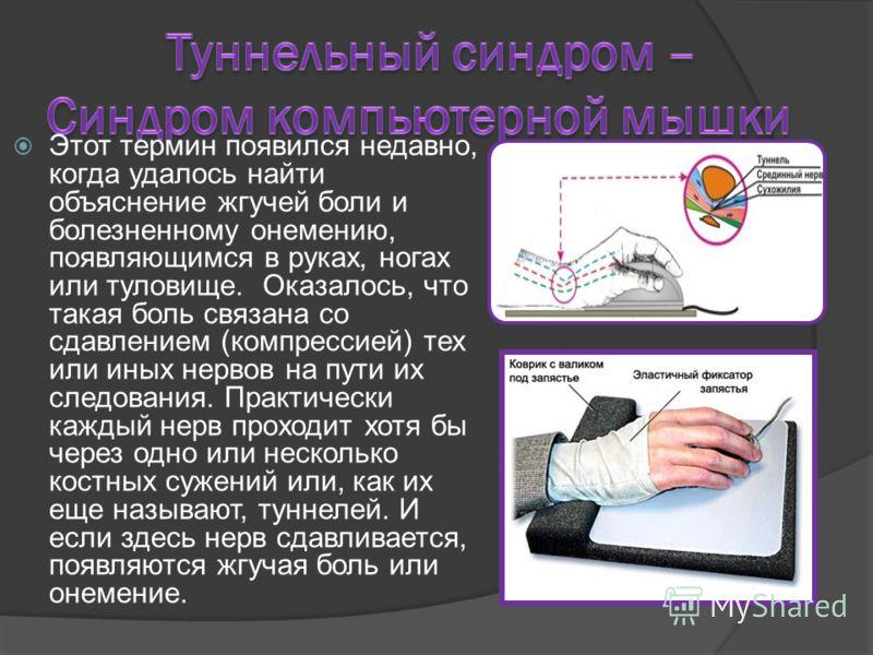 Этот термин появился недавно, когда удалось найти объяснение жгучей боли и болезненному онемению, появляющимся в руках, ногах или туловище. Оказалось, что такая боль связана со сдавлением (компрессией) тех или иных нервов на пути их следования. Практ