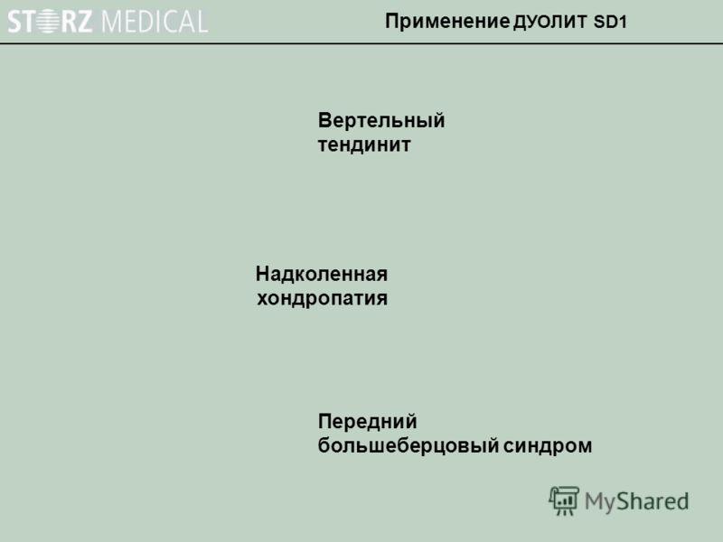 Вертельный тендинит Надколенная хондропатия Передний большеберцовый синдром Применение ДУОЛИТ SD1