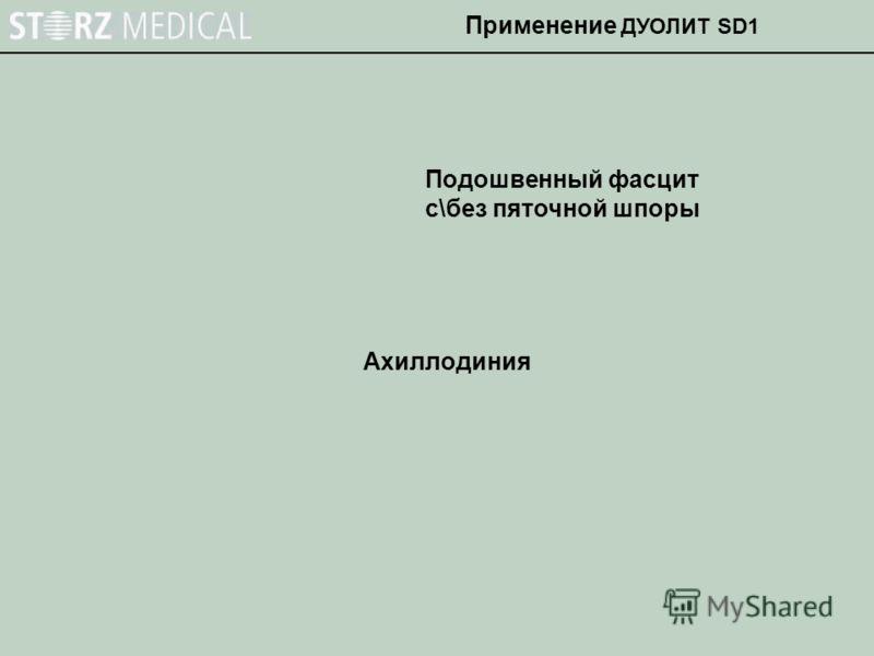 Ахиллодиния Подошвенный фасцит с\без пяточной шпоры Применение ДУОЛИТ SD1