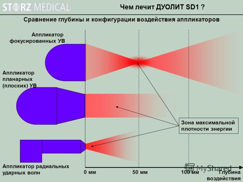 Сравнение глубины и конфигурации воздействия аппликаторов Чем лечит ДУОЛИТ SD1 ? 0 мм50 мм100 мм Глубина воздействия Аппликатор фокусированных УВ Аппликатор планарных (плоских) УВ Аппликатор радиальных ударных волн Зона максимальной плотности энергии