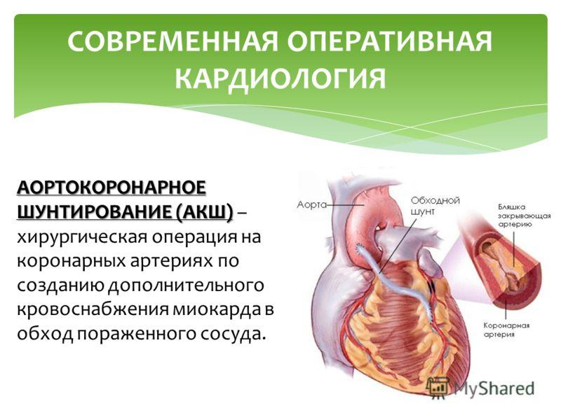 СОВРЕМЕННАЯ ОПЕРАТИВНАЯ КАРДИОЛОГИЯ АОРТОКОРОНАРНОЕ ШУНТИРОВАНИЕ (АКШ) АОРТОКОРОНАРНОЕ ШУНТИРОВАНИЕ (АКШ) – хирургическая операция на коронарных артериях по созданию дополнительного кровоснабжения миокарда в обход пораженного сосуда.