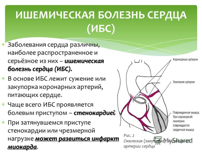 ишемическая болезнь сердца (ИБС). Заболевания сердца различны, наиболее распространенное и серьёзное из них – ишемическая болезнь сердца (ИБС). В основе ИБС лежит сужение или закупорка коронарных артерий, питающих сердце. стенокардией Чаще всего ИБС