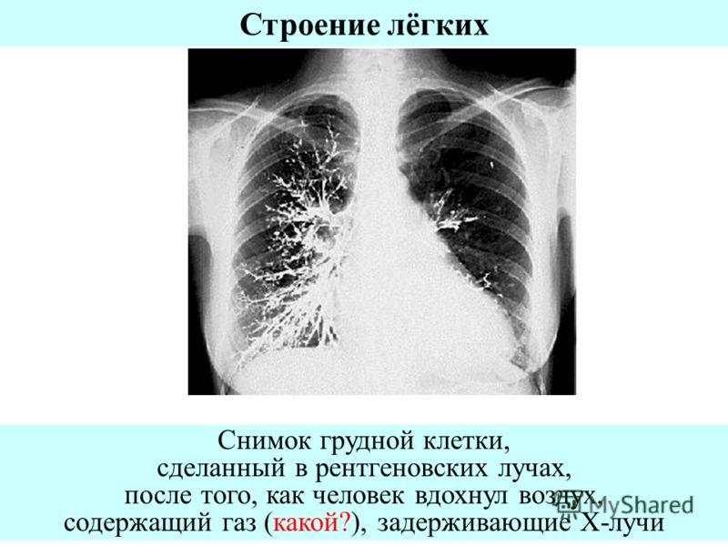 Снимок грудной клетки, сделанный в рентгеновских лучах, после того, как человек вдохнул воздух, содержащий газ (какой?), задерживающие Х-лучи Строение лёгких