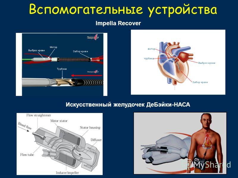 Вспомогательные устройства Искусственный желудочек ДеБэйки-НАСА Impella Recover