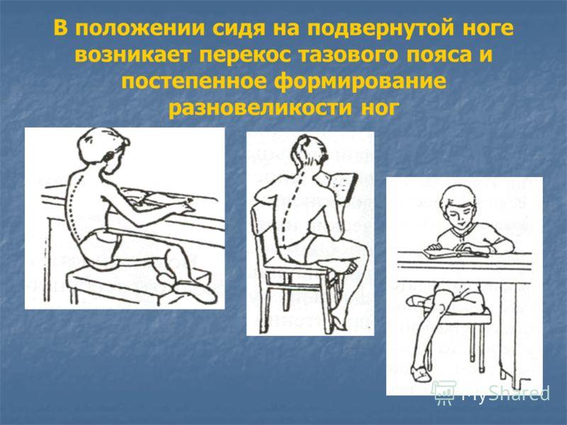 В положении сидя на подвернутой ноге возникает перекос тазового пояса и постепенное формирование разновеликости ног