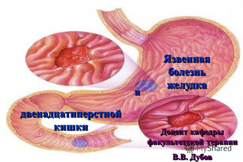 Кровотечение при язве двенадцатиперстной кишки, лечение