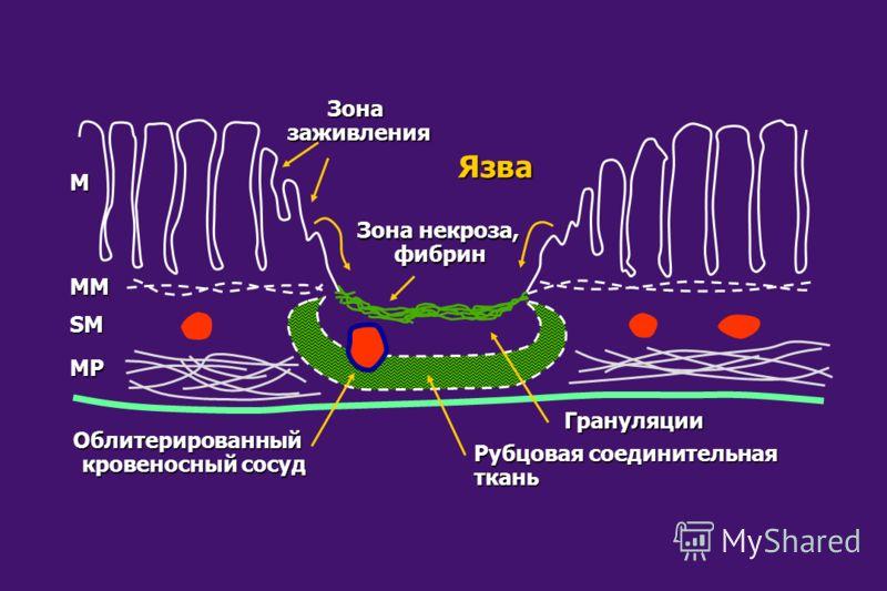 Облитерированный кровеносный сосуд Рубцовая соединительная ткань Грануляции Зоназаживления Язва Зона некроза, фибрин M MM SM MP