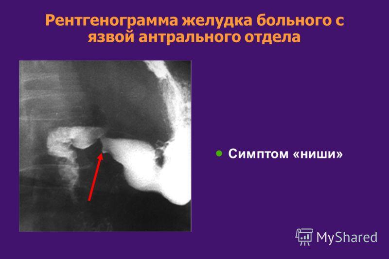 Рентгенограмма желудка больного с язвой антрального отдела Симптом «ниши»