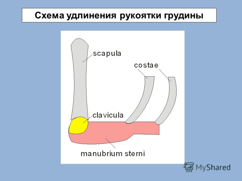 Схема удлинения рукоятки грудины