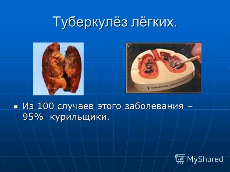 Туберкулёз лёгких. Из 100 случаев этого заболевания – 95% курильщики. Из 100 случаев этого заболевания – 95% курильщики.