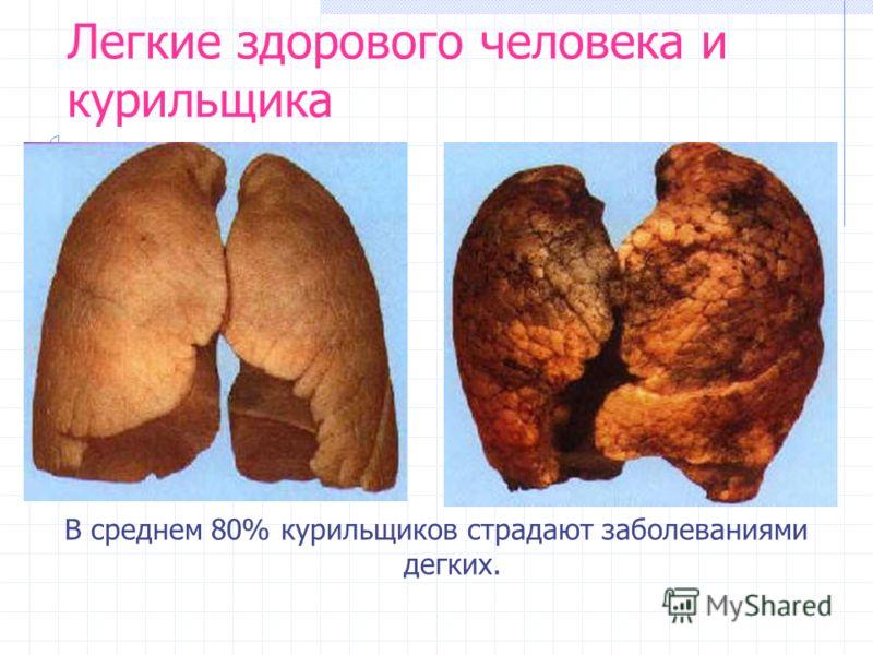 Легкие здорового человека и курильщика В среднем 80% курильщиков страдают заболеваниями дегких.