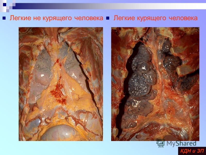 Легкие курящего человека Легкие не курящего человека КДН и ЗП