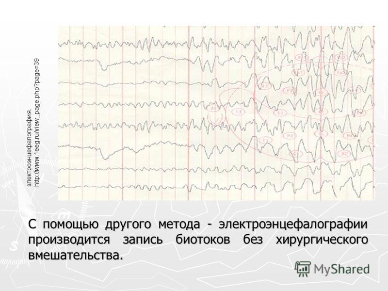 С помощью другого метода - электроэнцефалографии производится запись биотоков без хирургического вмешательства. электроэнцефалография. http://www.1eeg.ru/view_page.php?page=39