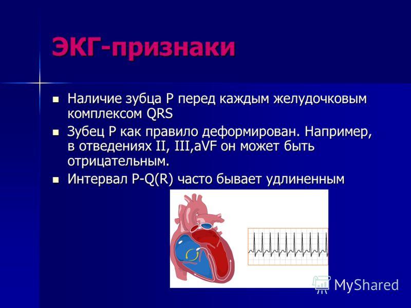 ЭКГ-признаки Наличие зубца P перед каждым желудочковым комплексом QRS Наличие зубца P перед каждым желудочковым комплексом QRS Зубец P как правило деформирован. Например, в отведениях II, III,aVF он может быть отрицательным. Зубец P как правило дефор