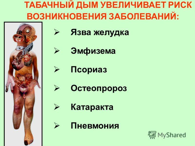 Язва желудка Эмфизема Псориаз Остеопророз Катаракта Пневмония ТАБАЧНЫЙ ДЫМ УВЕЛИЧИВАЕТ РИСК ВОЗНИКНОВЕНИЯ ЗАБОЛЕВАНИЙ: