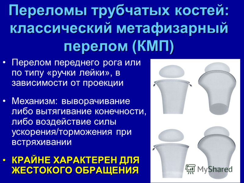 Переломы трубчатых костей: классический метафизарный перелом (КМП) Перелом переднего рога или по типу «ручки лейки», в зависимости от проекции Механизм: выворачивание либо вытягивание конечности, либо воздействие силы ускорения/торможения при встряхи