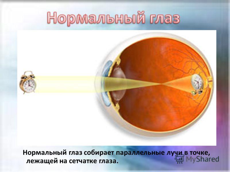 Нормальный глаз собирает параллельные лучи в точке, лежащей на сетчатке глаза.