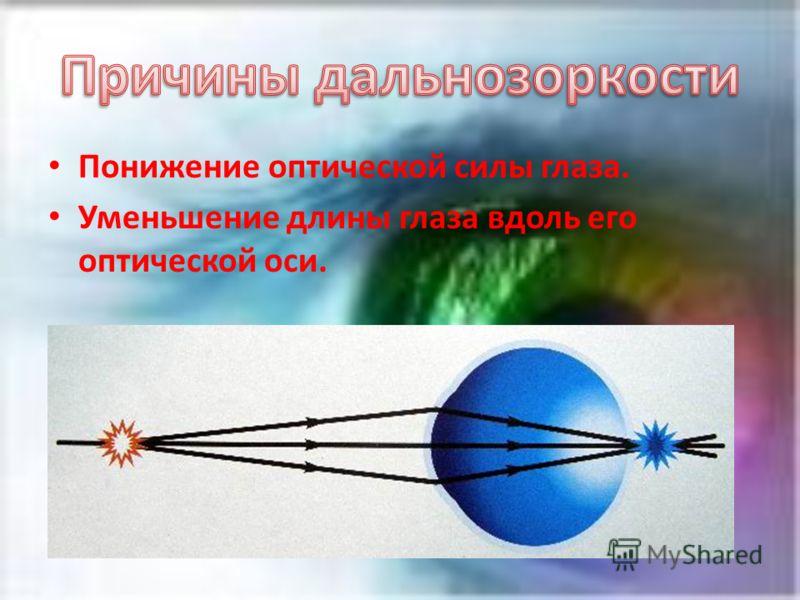 Понижение оптической силы глаза. Уменьшение длины глаза вдоль его оптической оси.