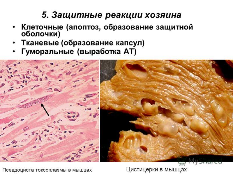 5. Защитные реакции хозяина Клеточные (апоптоз, образование защитной оболочки) Тканевые (образование капсул) Гуморальные (выработка АТ) Псевдоциста токсоплазмы в мышцах Цистицерки в мышцах