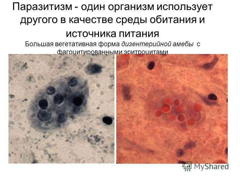 локализация паразитов в организме человека