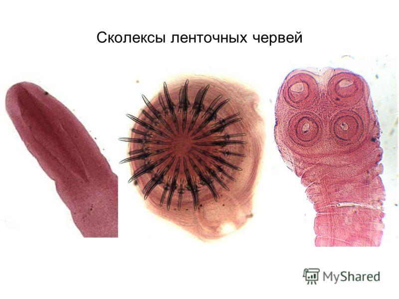 виды червей паразитов у человека