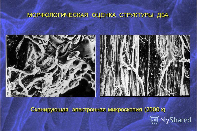МОРФОЛОГИЧЕСКАЯ ОЦЕНКА СТРУКТУРЫ ДБА Сканирующая электронная микроскопия (2000 х)