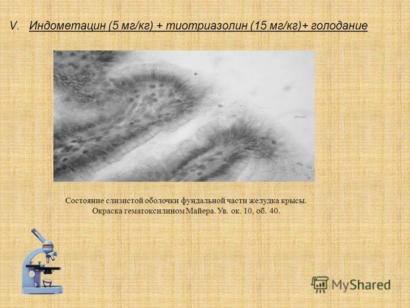 V.Индометацин (5 мг/кг) + тиотриазолин (15 мг/кг)+ голодание Состояние слизистой оболочки фундальной части желудка крысы. Окраска гематоксилином Майера. Ув. ок. 10, об. 40.
