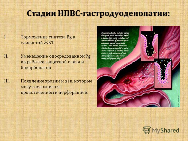 Стадии НПВС-гастродуоденопатии: I.Торможение синтеза Pg в слизистой ЖКТ II.Уменьшение опосредованной Pg выработки защитной слизи и бикарбонатов III.Появление эрозий и язв, которые могут осложнятся кровотечением и перфорацией.