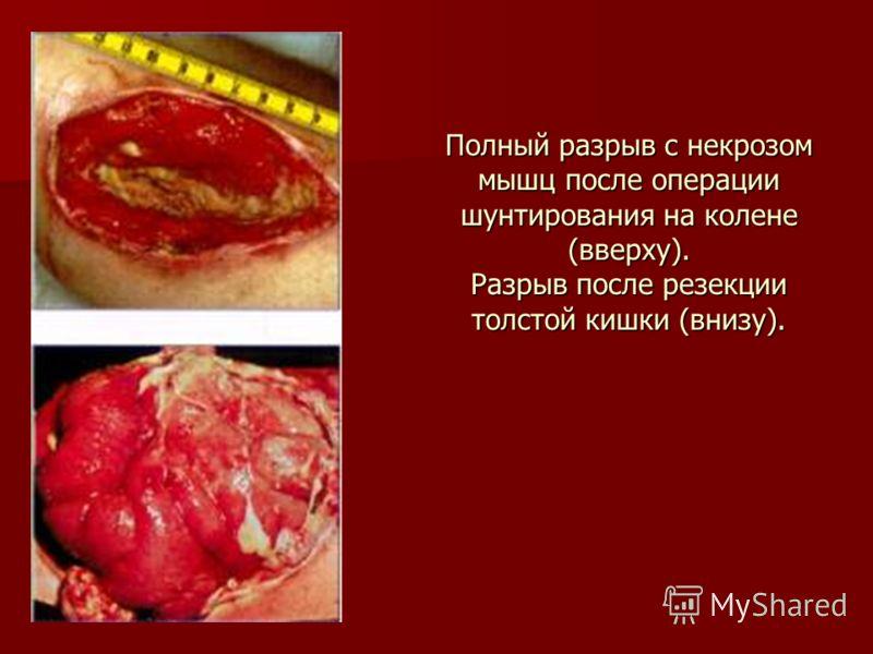 Полный разрыв с некрозом мышц после операции шунтирования на колене (вверху). Разрыв после резекции толстой кишки (внизу).