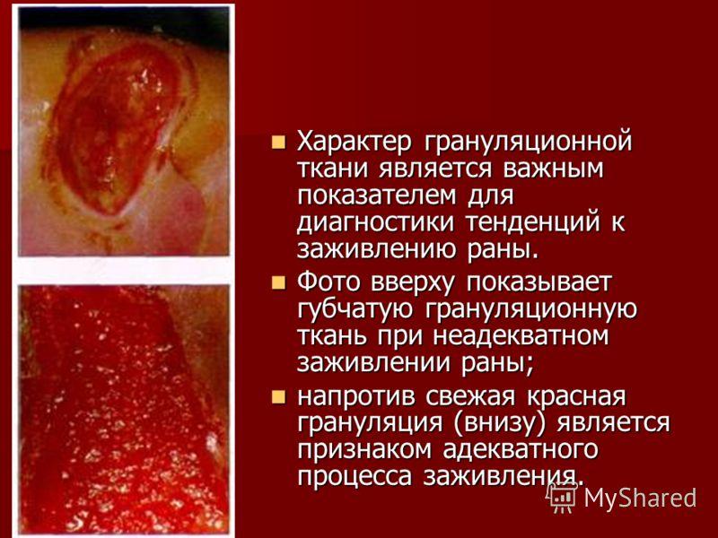 Характер грануляционной ткани является важным показателем для диагностики тенденций к заживлению раны. Характер грануляционной ткани является важным показателем для диагностики тенденций к заживлению раны. Фото вверху показывает губчатую грануляционн