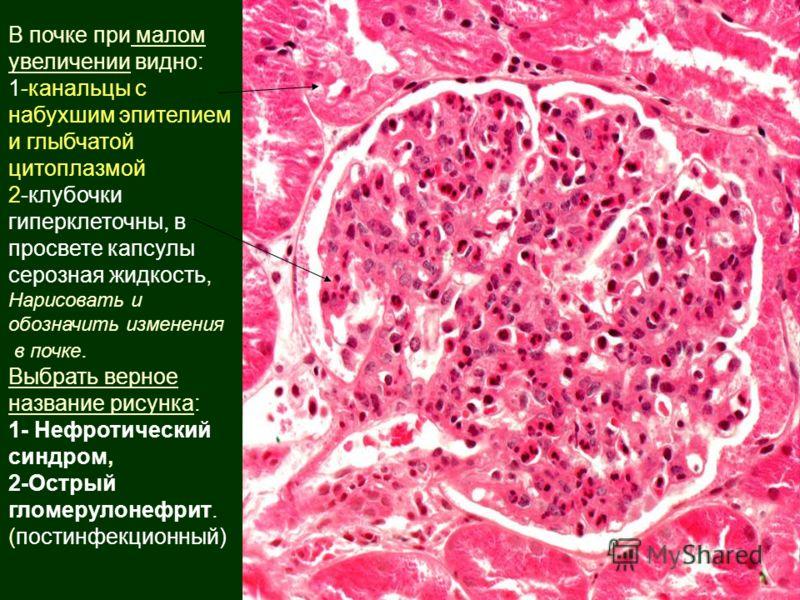 В почке при малом увеличении видно: 1-канальцы с набухшим эпителием и глыбчатой цитоплазмой 2-клубочки гиперклеточны, в просвете капсулы серозная жидкость, Нарисовать и обозначить изменения в почке. Выбрать верное название рисунка: 1- Нефротический с