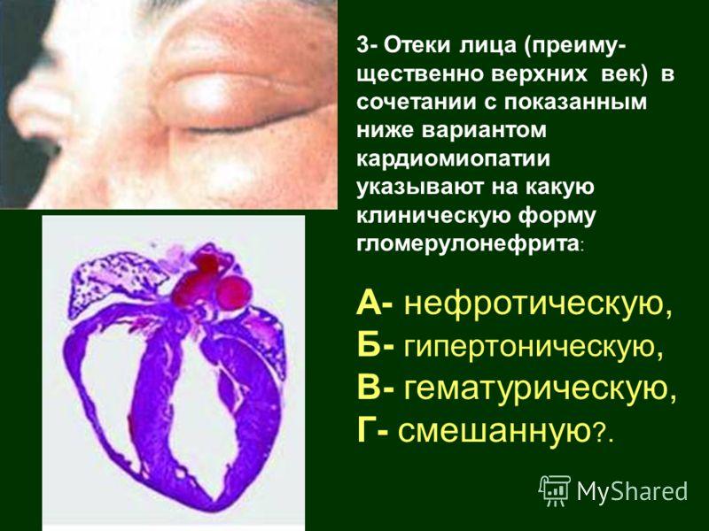 3- Отеки лица (преиму- щественно верхних век) в сочетании с показанным ниже вариантом кардиомиопатии указывают на какую клиническую форму гломерулонефрита : А- нефротическую, Б- гипертоническую, В- гематурическую, Г- смешанную ?.