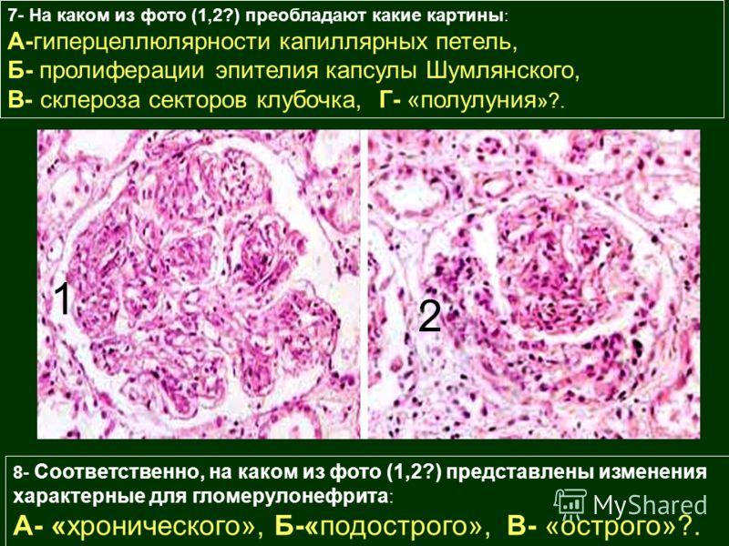 7- На каком из фото (1,2?) преобладают какие картины : А-гиперцеллюлярности капиллярных петель, Б- пролиферации эпителия капсулы Шумлянского, В- склероза секторов клубочка, Г- «полулуния »?. 1 2 8- Соответственно, на каком из фото (1,2?) представлены