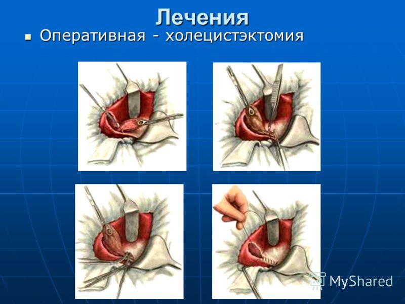 Лечения Оперативная - холецистэктомия Оперативная - холецистэктомия