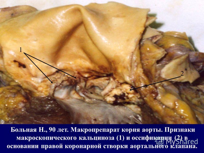 Больная Н., 90 лет. Макропрепарат корня аорты. Признаки макроскопического кальциноза (1) и оссификации (2) в основании правой коронарной створки аортального клапана. 1 2