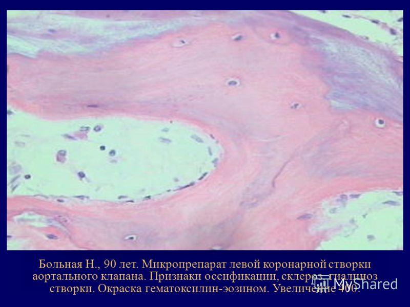 Больная Н., 90 лет. Микропрепарат левой коронарной створки аортального клапана. Признаки оссификации, склероз, гиалиноз створки. Окраска гематоксилин-эозином. Увеличение 400.