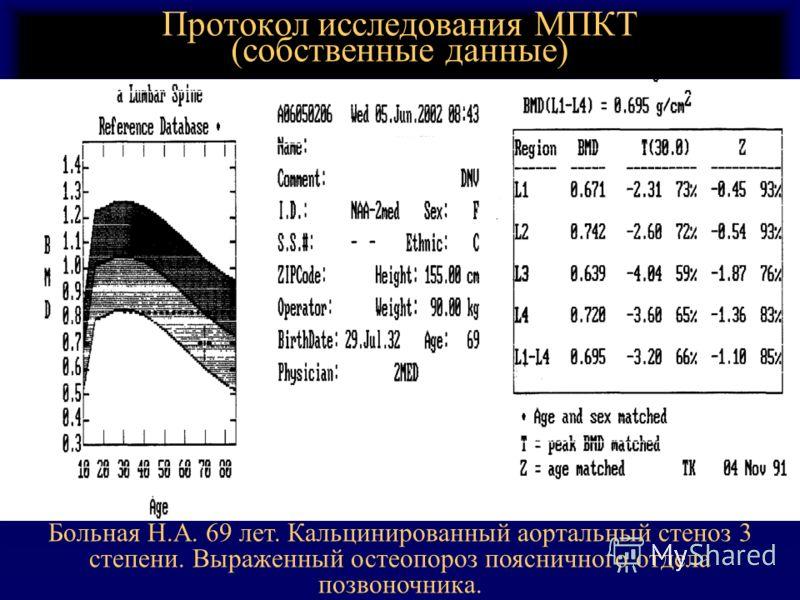 Протокол исследования МПКТ (собственные данные) Больная Н.А. 69 лет. Кальцинированный аортальный стеноз 3 степени. Выраженный остеопороз поясничного отдела позвоночника.