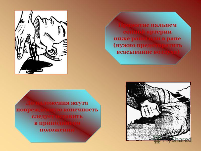 СПОСОБЫ ОСТАНОВКИ КРОВОТЕЧЕНИЯ Прижми артерию пальцем или кулаком в точке прижатия артерии Временная остановка кровотечения из ран ладони Прижатие лучевой артерии у бицепса (можно двумя руками)