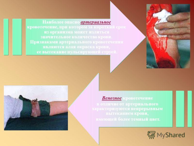В зависимости от вида поврежденного кровеносного сосуда различают артериальные, венозные, капиллярные и паренхиматозные кровотечения. В зависимости от вида поврежденного кровеносного сосуда различают артериальные, венозные, капиллярные и паренхиматоз