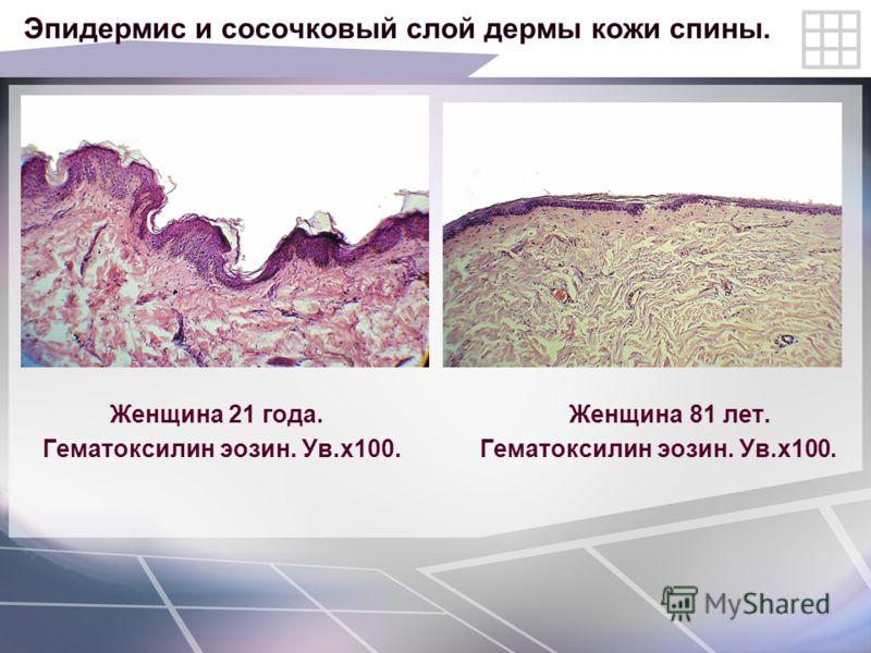 Эпидермис и сосочковый слой дермы кожи спины. Женщина 21 года. Женщина 81 лет. Гематоксилин эозин. Ув.х100. Гематоксилин эозин. Ув.х100.