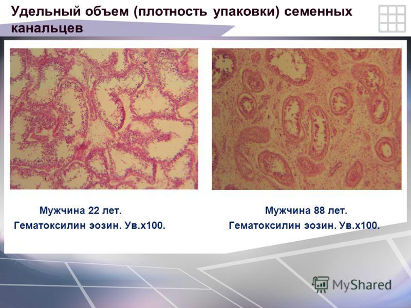 Удельный объем (плотность упаковки) семенных канальцев Мужчина 22 лет. Мужчина 88 лет. Гематоксилин эозин. Ув.х100.