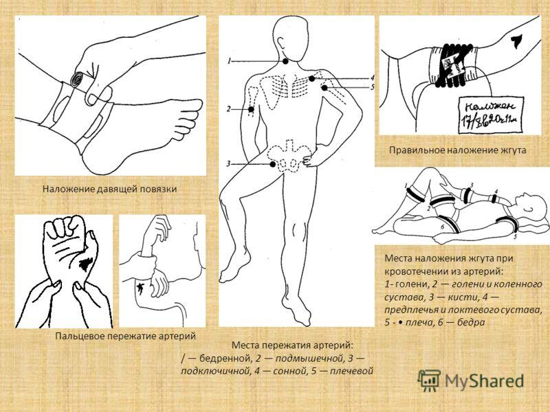Наложение давящей повязки Места пережатия артерий: / бедренной, 2 подмышечной, 3 подключичной, 4 сонной, 5 плечевой Пальцевое пережатие артерий Правильное наложение жгута Места наложения жгута при кровотечении из артерий: 1- голени, 2 голени и коленн