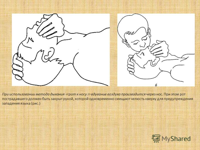При использовании метода дыхания рот к носу вдувание воздуха производится через нос. При этом рот пострадавшего должен быть закрыт рукой, которой одновременно смещают челюсть кверху для предупреждения западения языка (рис.)
