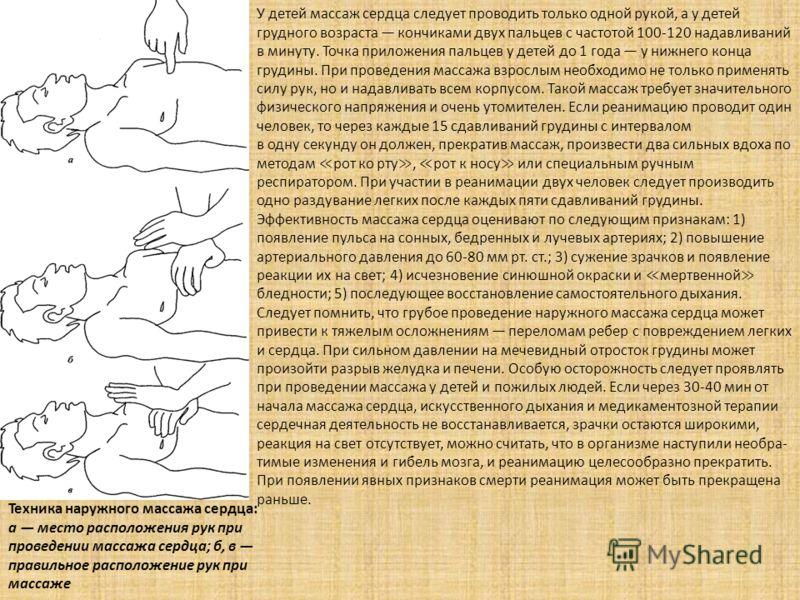 Техника наружного массажа сердца: а место расположения рук при проведении массажа сердца; б, в правильное расположение рук при массаже У детей массаж сердца следует проводить только одной рукой, а у детей грудного возраста кончиками двух пальцев с ча
