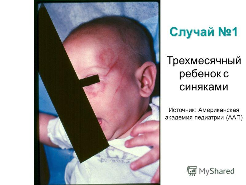 Случай 1 Трехмесячный ребенок с синяками Источник: Американская академия педиатрии (ААП)