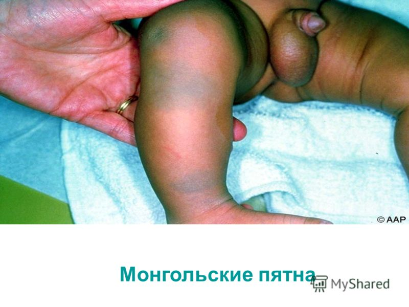 Монгольские пятна