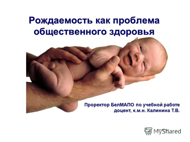 Рождаемость как проблема общественного здоровья Проректор БелМАПО по учебной работе доцент, к.м.н. Калинина Т.В.