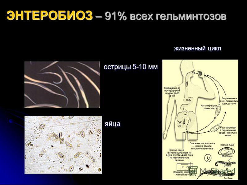 ЭНТЕРОБИОЗ – 91% всех гельминтозов жизненный цикл жизненный цикл острицы 5-10 мм острицы 5-10 мм яйца яйца