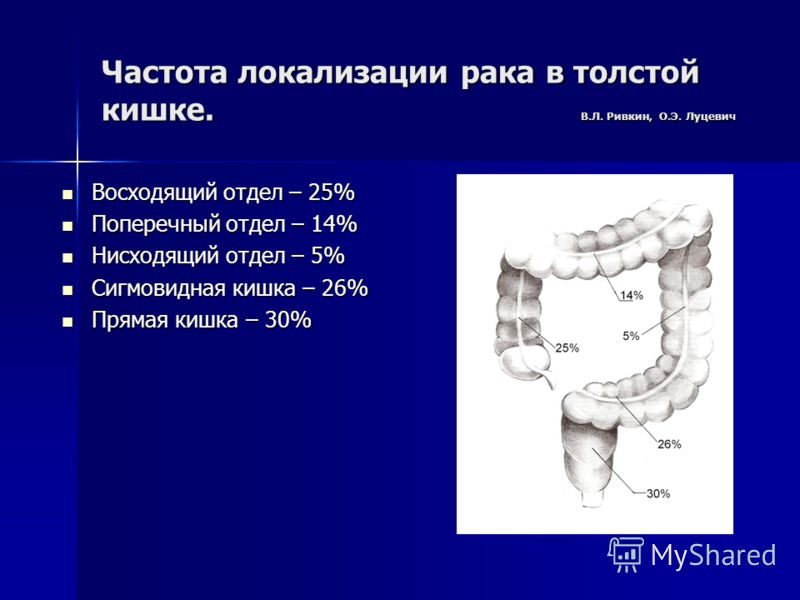Частота локализации рака в толстой кишке. В.Л. Ривкин, О.Э. Луцевич Восходящий отдел – 25% Восходящий отдел – 25% Поперечный отдел – 14% Поперечный отдел – 14% Нисходящий отдел – 5% Нисходящий отдел – 5% Сигмовидная кишка – 26% Сигмовидная кишка – 26