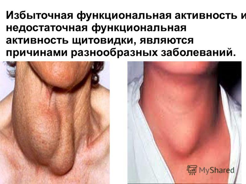 Избыточная функциональная активность и недостаточная функциональная активность щитовидки, являются причинами разнообразных заболеваний.